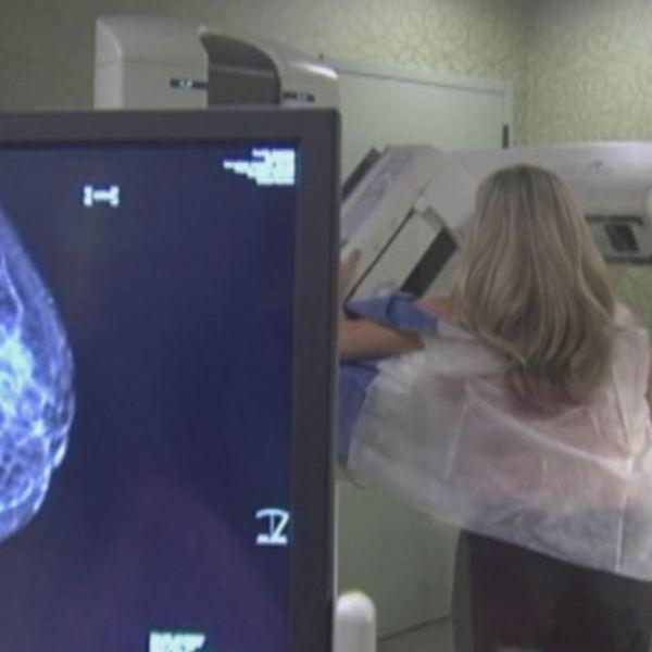 3D Mammograms_433054