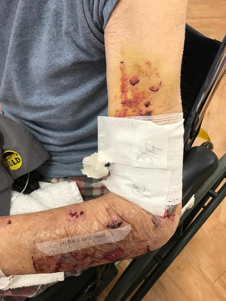 Bruising on Jim Nokes' arm during the week of March 20, 2017. (Nokes Family Photo)