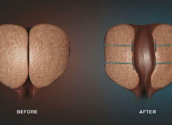 Procedure for enlarged prostate_450336