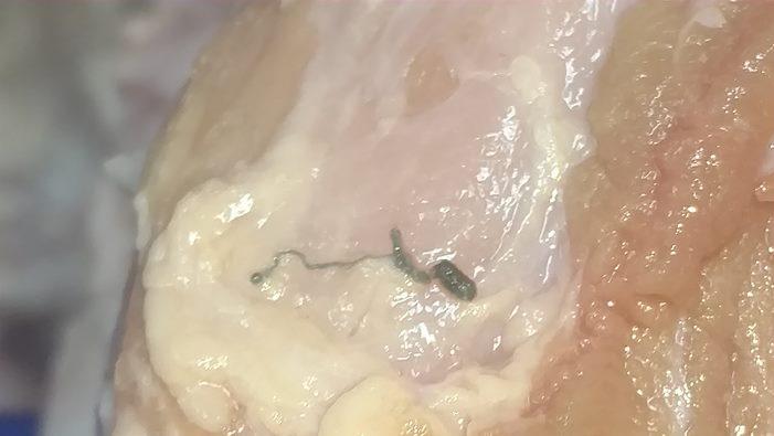 feral hog tapeworm 2_625275