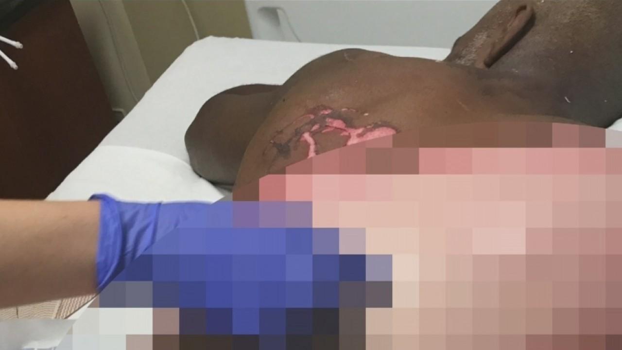 Robert Williams' Wingstop injuries