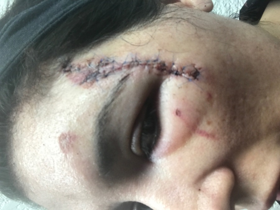 Injuries Williams says she sustained in the incident as a result of excessive force