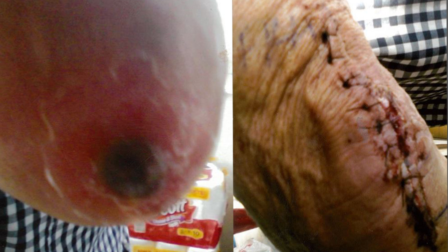 Henry McCall's brown recluse bite before and after treatment (Courtesy Henry McCall)