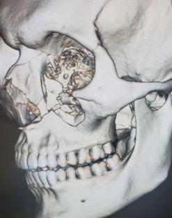 Photo of damage to Sam Kirsch's skull near his left eye (Courtesy: Hendler Flores Law)